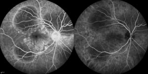 Right eye of a patient with Acute Posterior Multifocal Placoid Pigment Epitheliopathy (APMPPE), a rare inflammatory eye disease seen in young adults. The photo on the left is fluorescein angiography which highlights the blood vessels in the retina. The photo on the right is indocyanine green angiography which highlights the blood vessels under the retina.