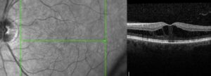 Photo on the left is of a macula with edema. The photo on the right is a cross-sectional image (OCT) of the same macula showing the swelling (macular edema).